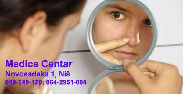Acne vulgaris – Akne (bubuljice)