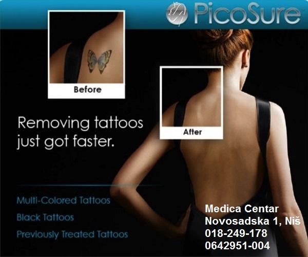 Uklanjenje tetovaža Picosecond laser