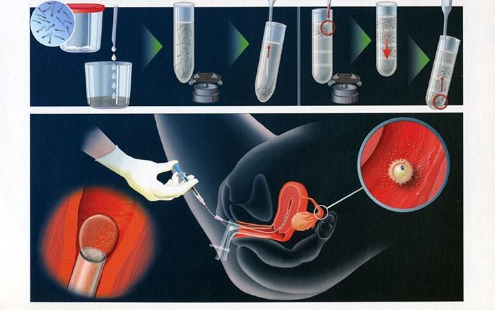 Intrauterina inseminacija