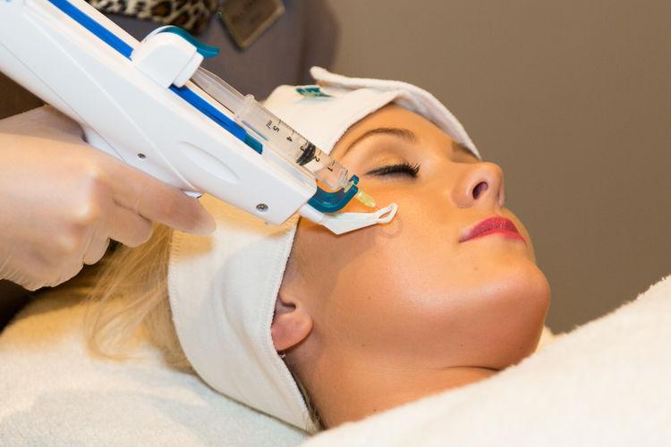 Mezoterapija – tretmani lica i tela