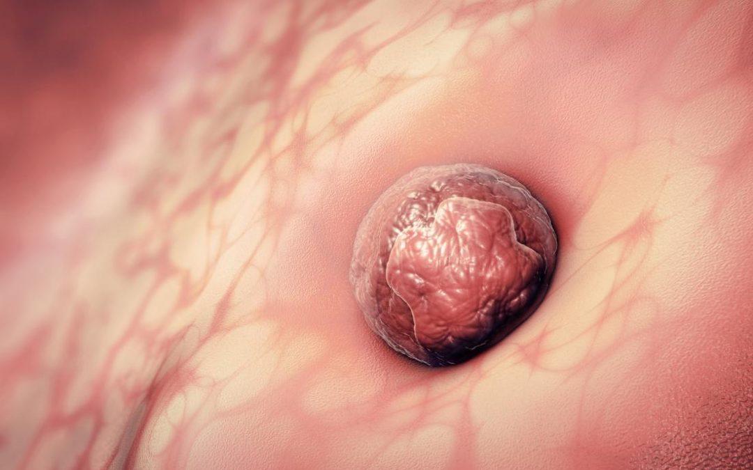 Citokinska mreža endometrijuma od menstruacije do implantacije