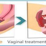 hifu sužavanje vagine