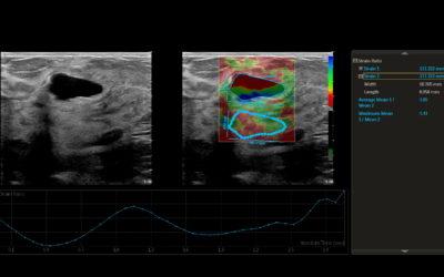 Elastografija i diferencijalna dijagnoza malignih tumora dojke